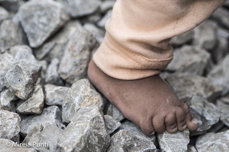 Pie de un niño en el campo de refugiados de Idomeni